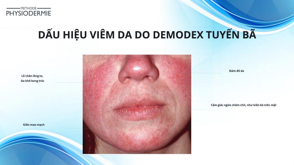 Dấu hiệu viêm da do demodex tuyến bã