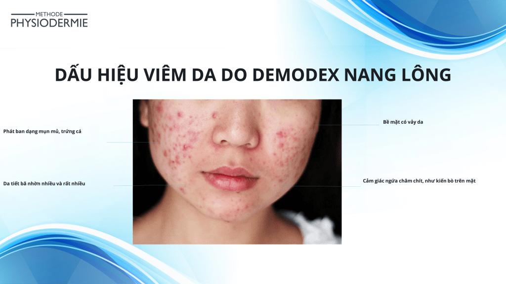 Dấu hiệu viêm da do demodex nang lông