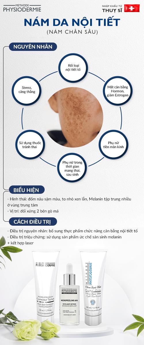 Các loại nám da phổ biến - Nám chân sâu